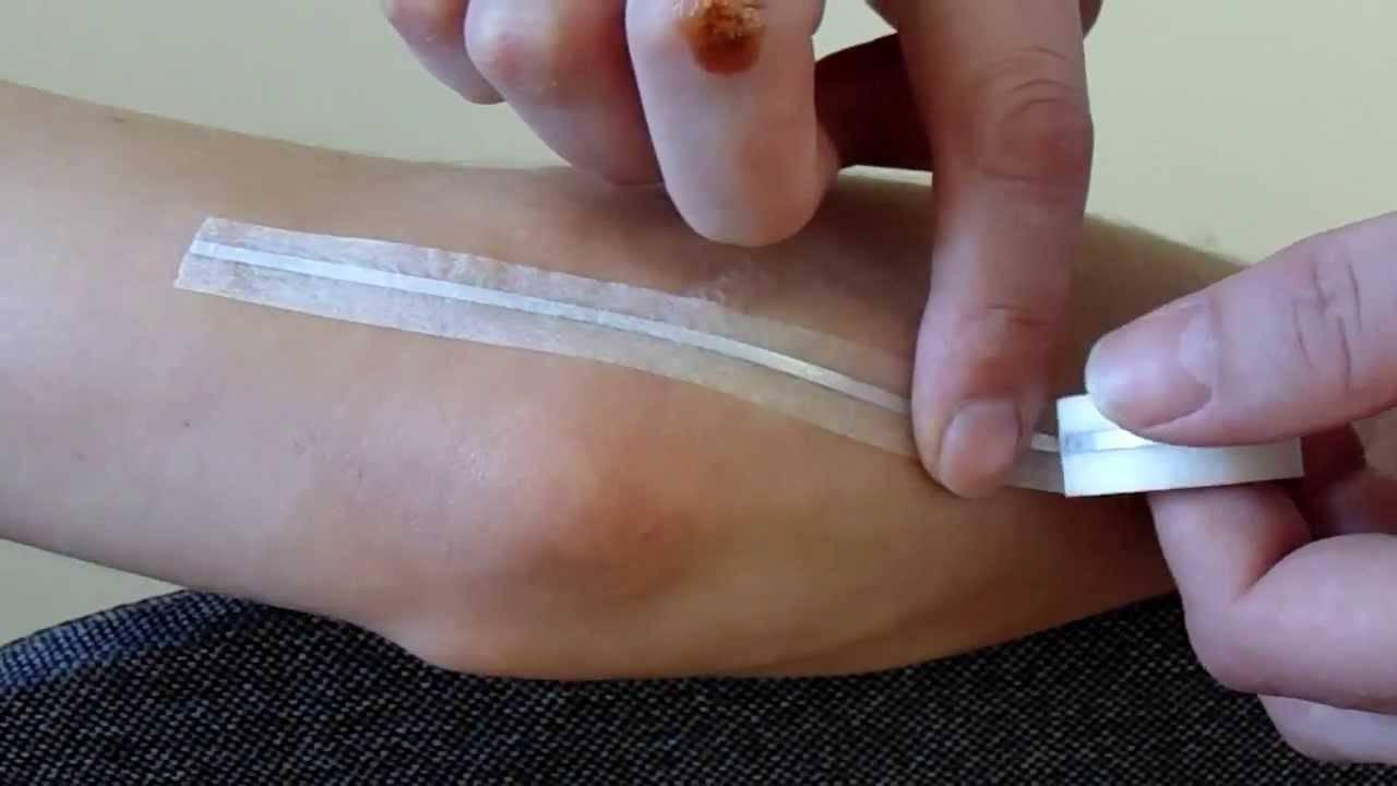 Лечение серебряными мостиками. что они лечат и как их применять