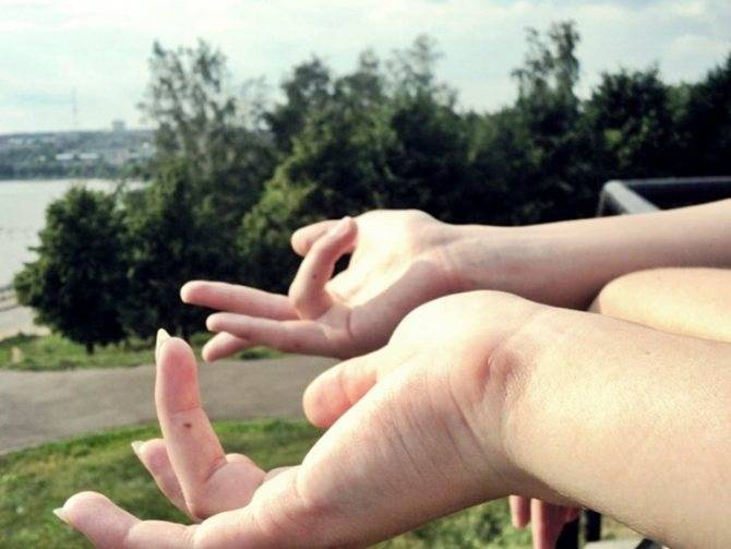 Родинки на пальцах рук — о чем расскажут знаки   народные приметы   яндекс дзен