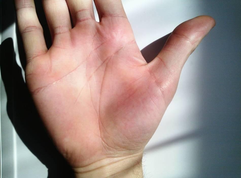 Треугольник на линии ума (головы): хиромантия, правая и левая рука, большой