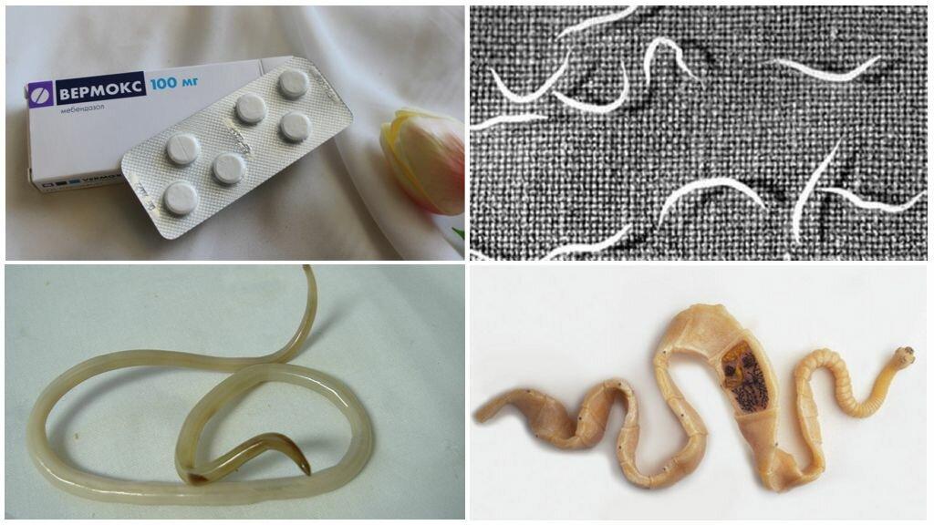 Как вывести паразитов из организма в домашних условиях народными средствами и лекарствами