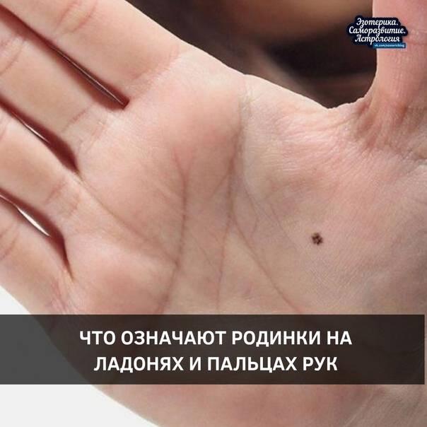 Приметы что значат родинки на руках и ладонях