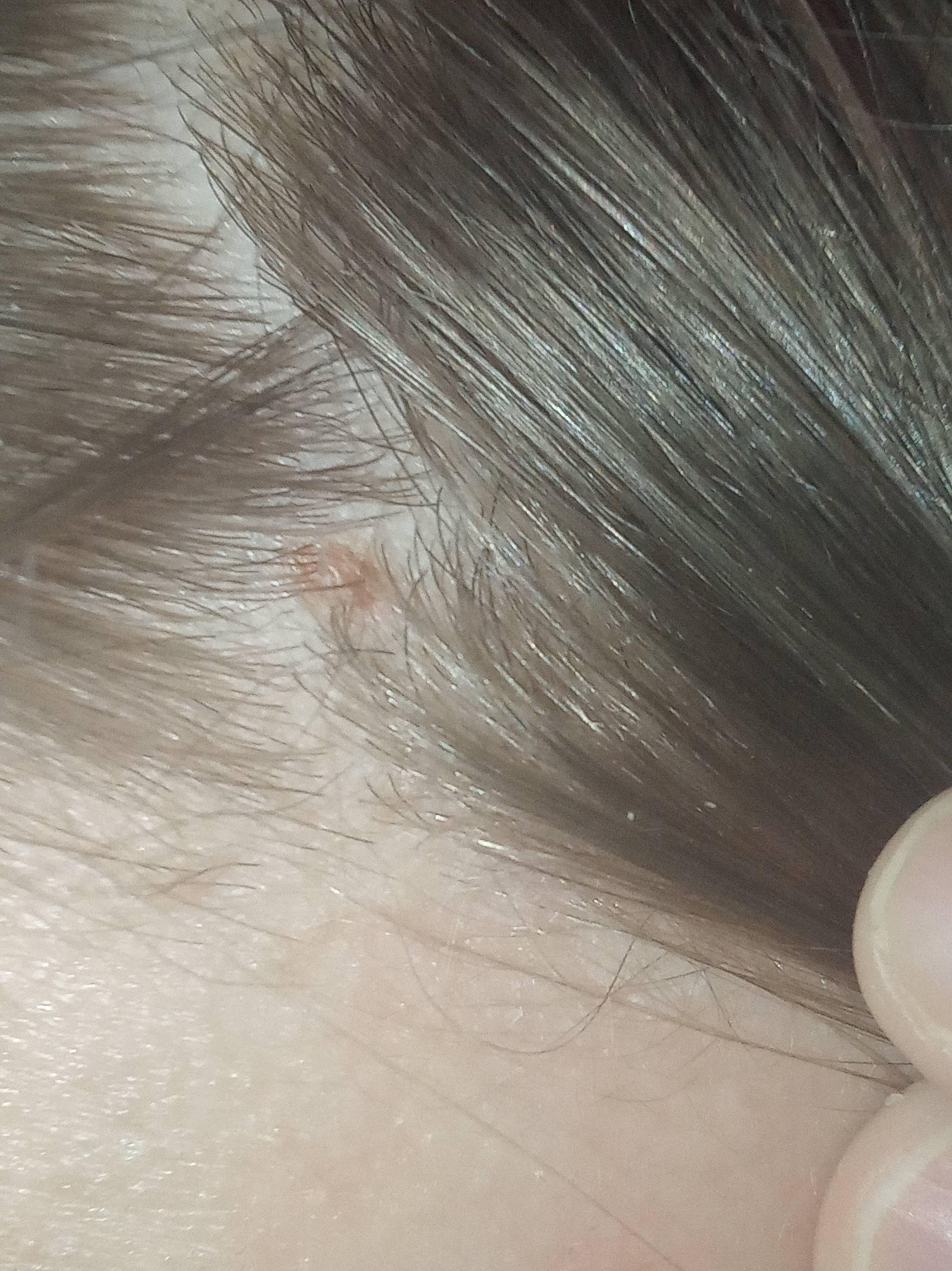 Виды невусов на голове(фото)