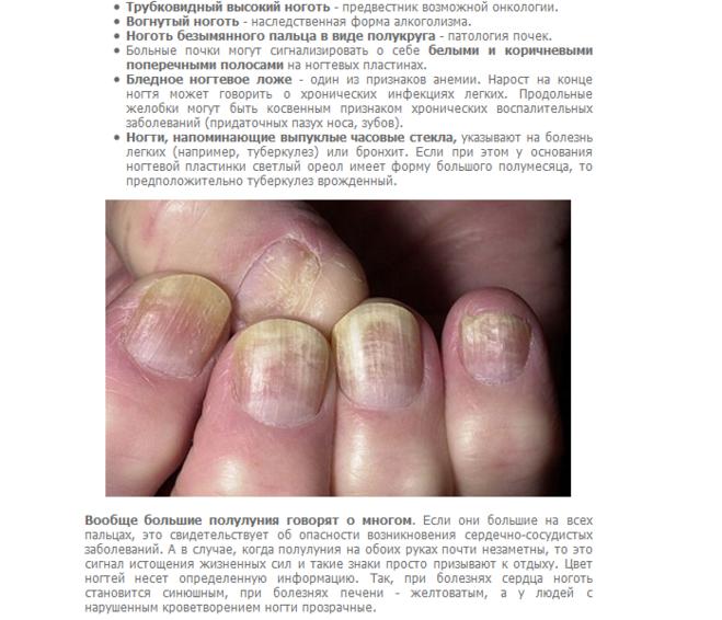 Белые пятна на ногтях — что это означает, причины. приметы, к чему белые пятнышки на ногтях