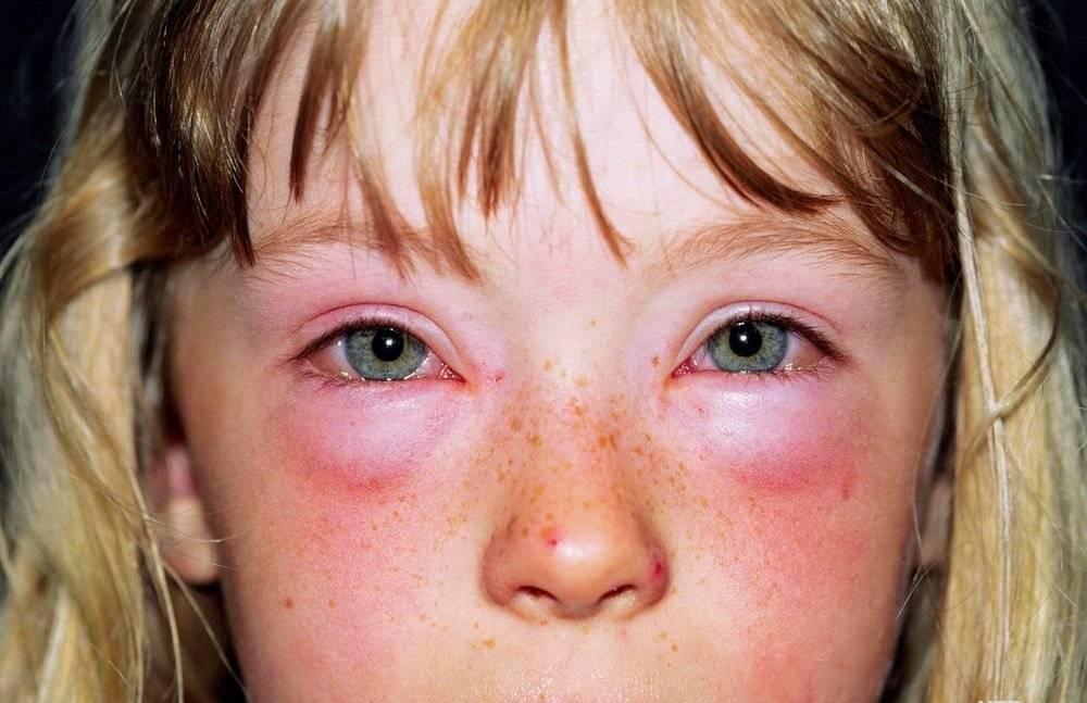 Заговоры от аллергии - для младенцев, детей и взрослых