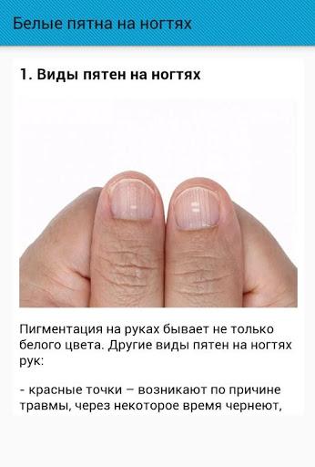 Белые пятна на ногтях: причины и лечение в домашних условиях