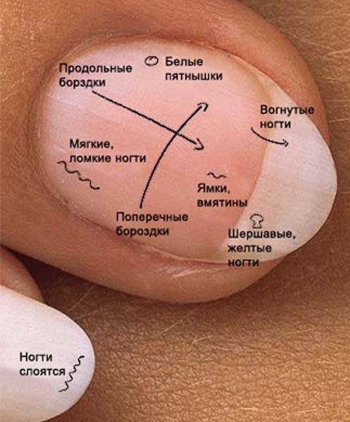 Как лечить белые пятна на ногтях пальцев рук: причины появления, способы лечения и простые профилактические меры