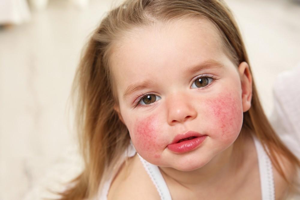 Заговор от аллергии: лечим все виды недуга при помощи магии