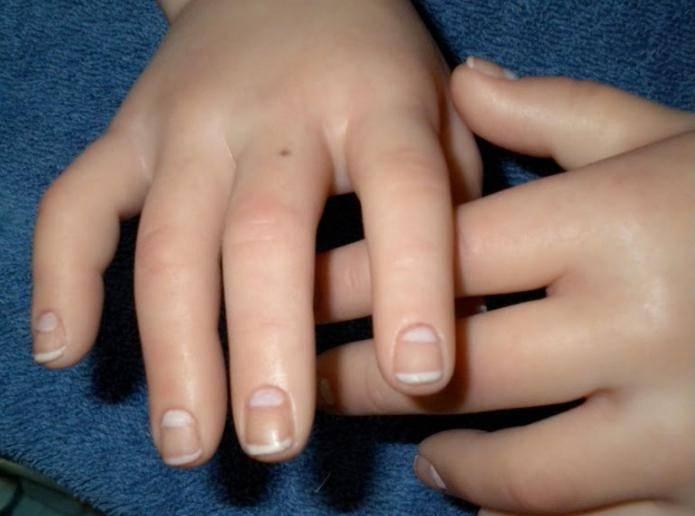 Что в хиромантии означают родинки на ладонях и пальцах