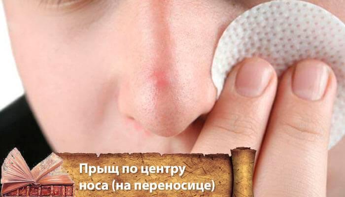 Прыщ на носу - примета двузначная
