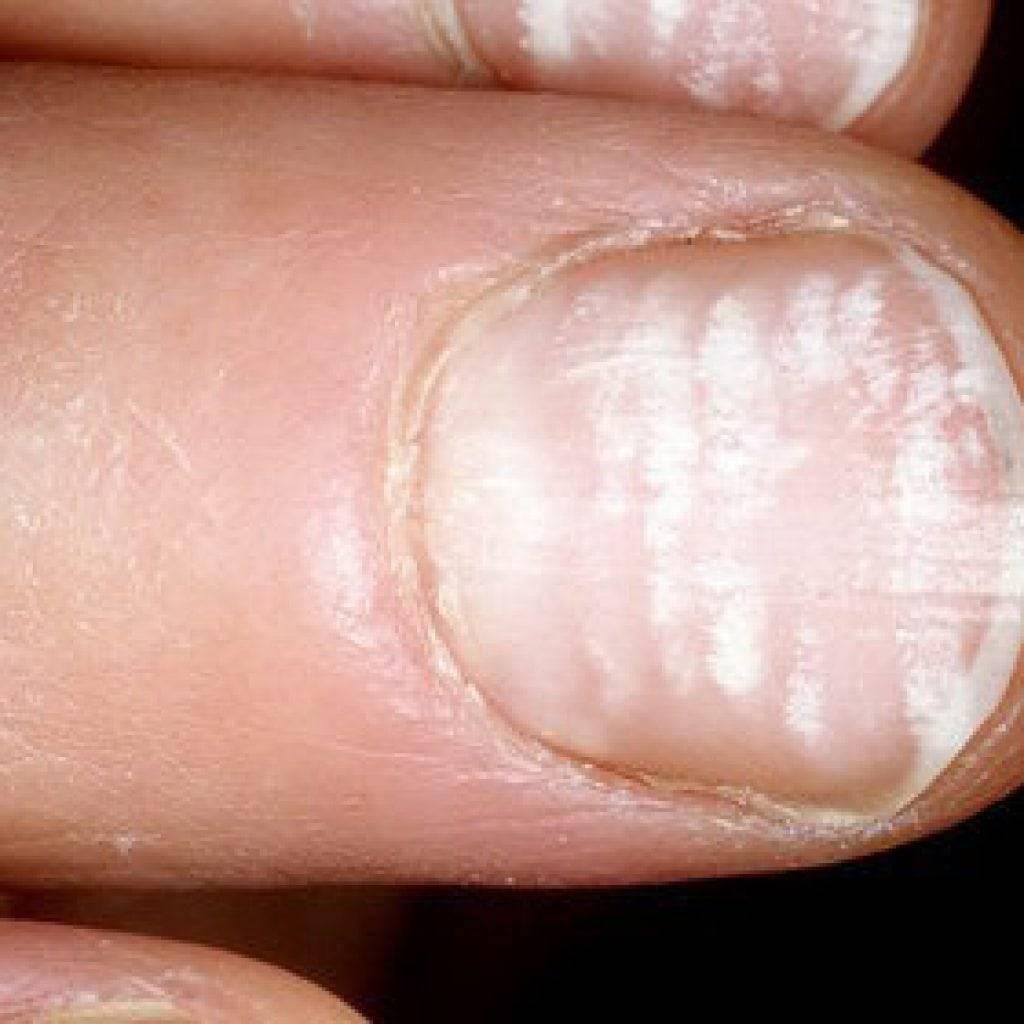 Белые пятна на ногтях пальцев рук - что они означают и почему появляются?