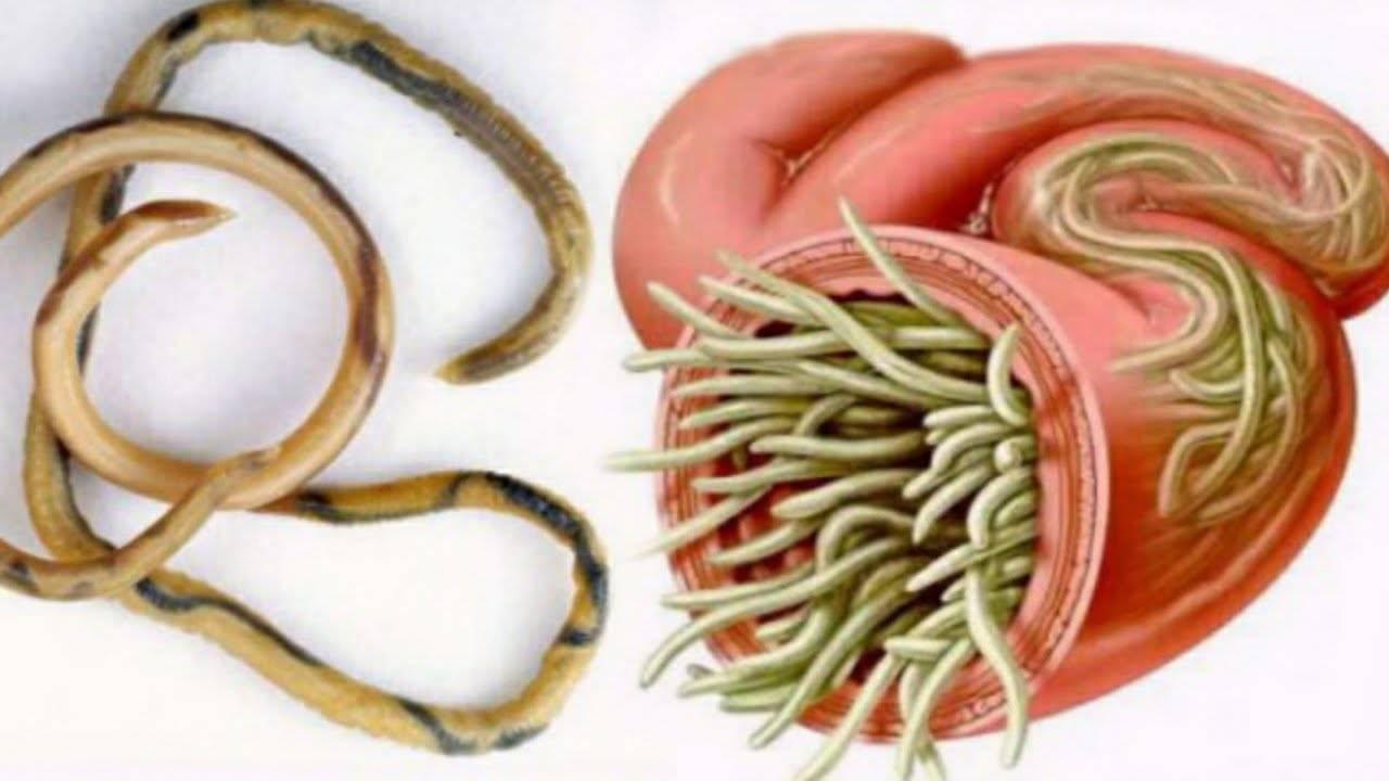 Народные средства от паразитов - рецепты и лечение