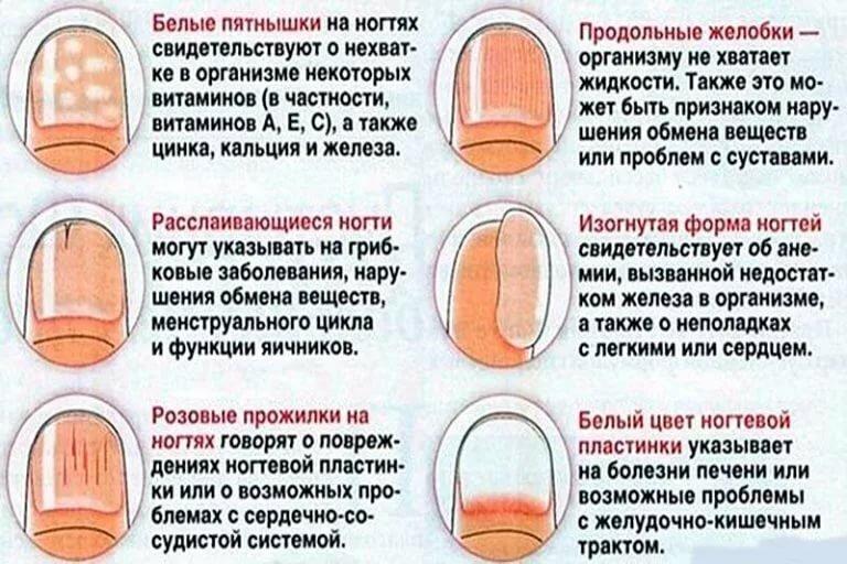 Белые пятна на ногтях пальцев рук: причина у женщин и мужчин, приметы, что означает, как лечить, последствия