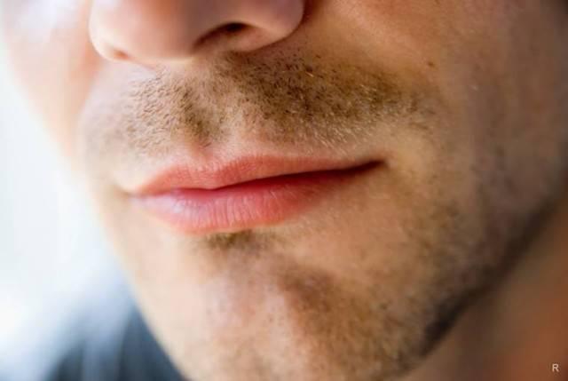 Прыщ над верхней губой примета слева | стоматологический портал