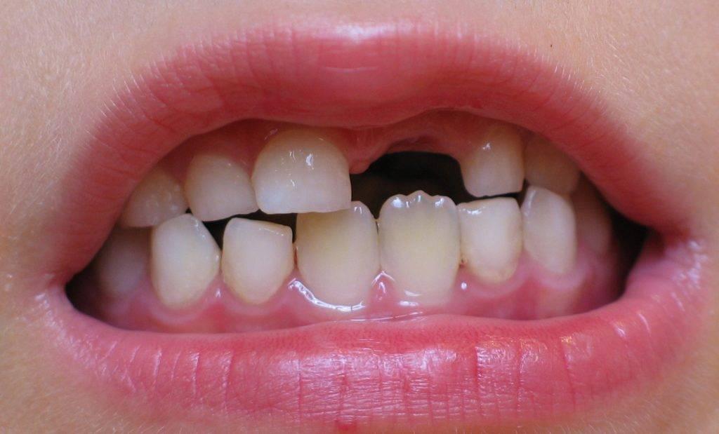 Зуб выпал а на его месте новый