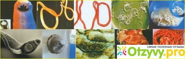 Заговор от глистов — изгнание паразитов