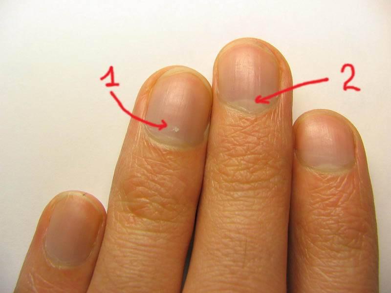 На ногтях рук белые пятна: предвестники заболеваний, приметы