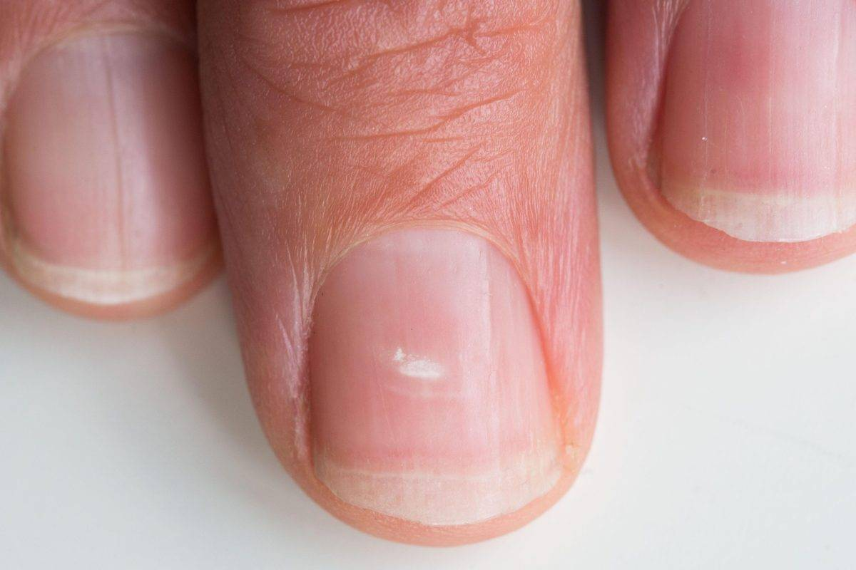 Белые точки на ногтях - что они означают, причины появления у ребенка и взрослого