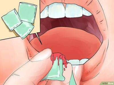 Сонник потеря зубов с кровью. к чему снится потеря зубов с кровью видеть во сне - сонник дома солнца