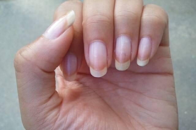 Белые точки на ногтях - причины и приметы. что означает появление белых точек на ногтях