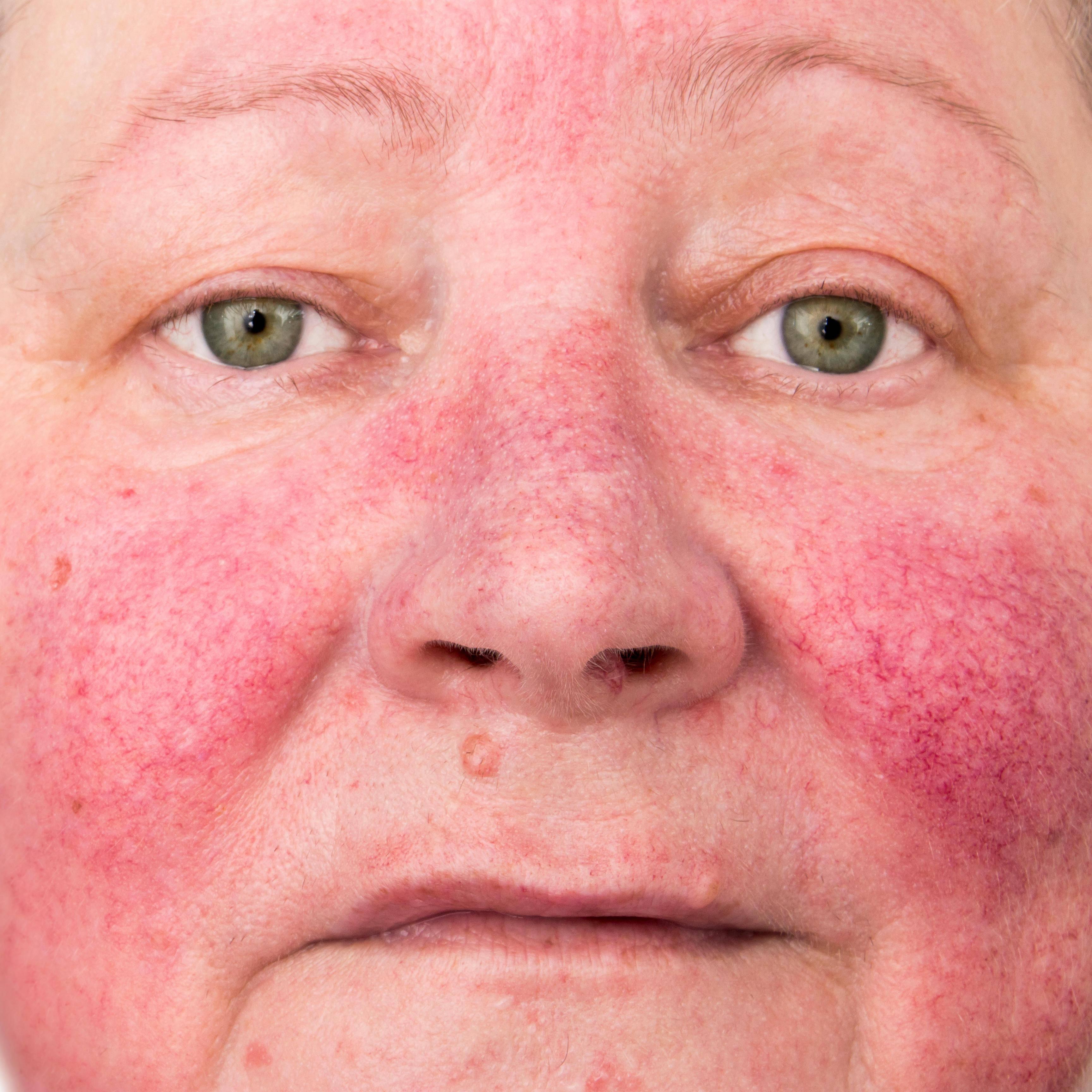 Заговор от аллергии: как читать