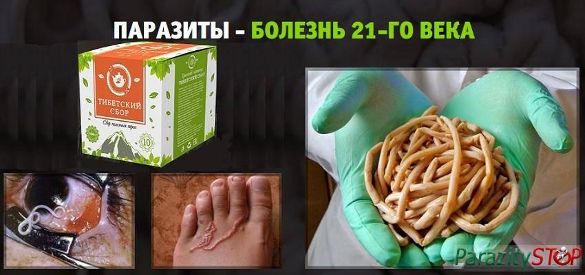 Как избавиться от глистов за 1 день - в домашних условиях