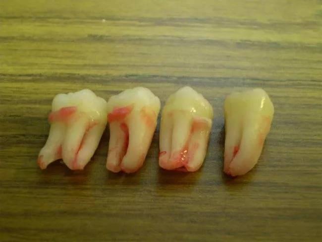 Здоровый зуб выпал