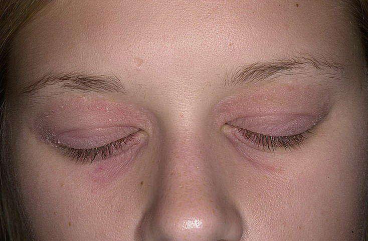 Молитва от аллергии у ребенка на лице. сильнодействующий заговор от аллергии у ребенка