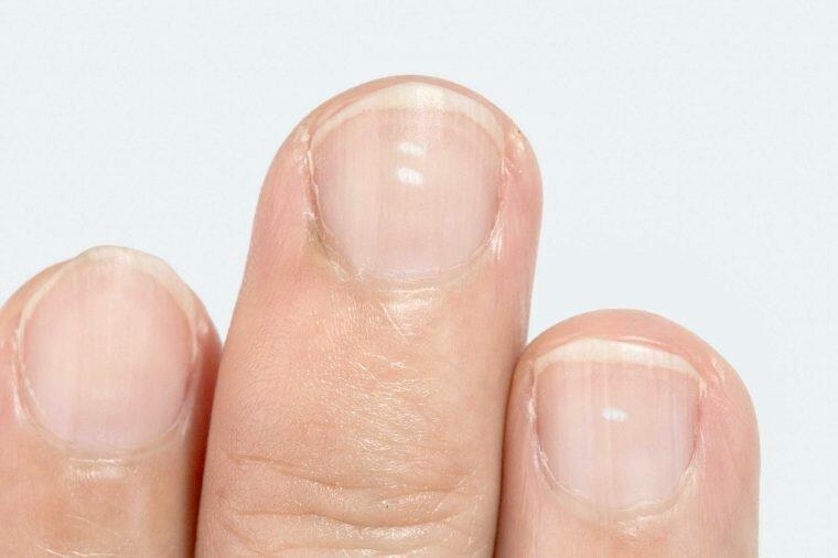 Белые пятна на ногтях рук - что означают?