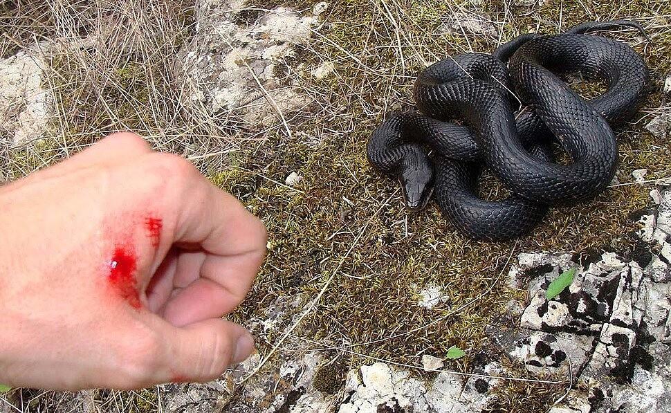 Змея укусила