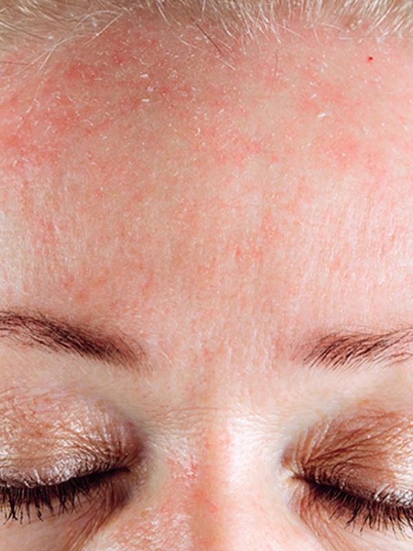 Сильные заговоры от аллергии