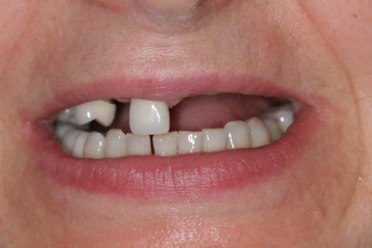 Зубы выпали без боли