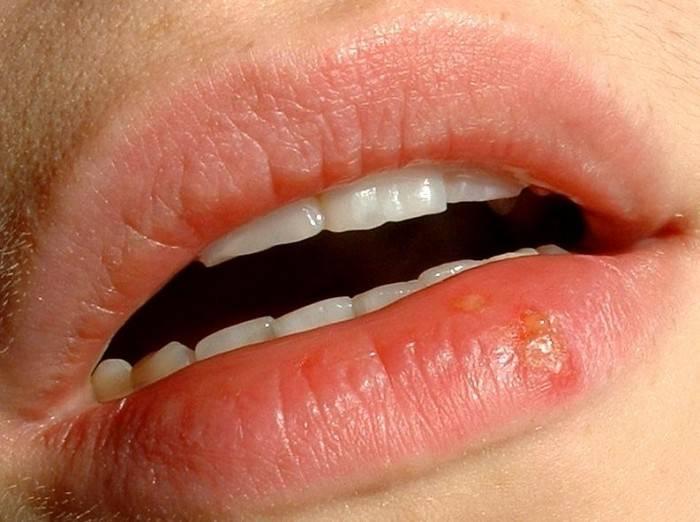 Вскочил прыщ на верхней губе примета | стоматологический портал
