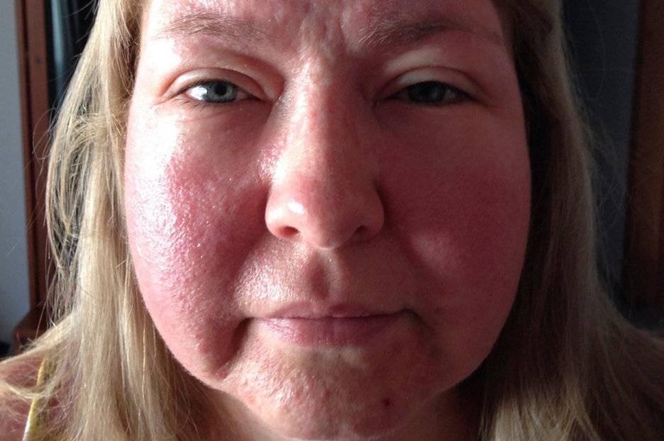Сыпь и зуд признаки аллергии- как использовать заговор для борьбы с недугом