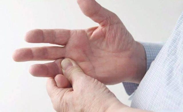 Чешется правая рука — будущее по приметам