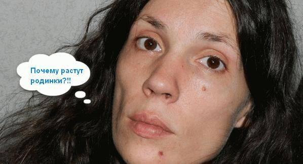 Заговор от папиллом - лечение без операций