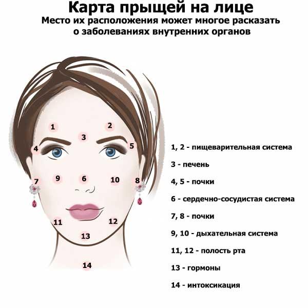 К чему вскакивает прыщ на разных частях лица и тела: народные приметы - расскажем