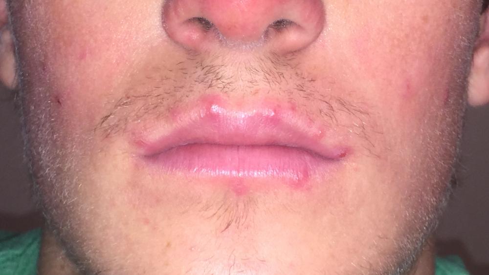 Приметы: прыщ на губе, над верхней губой или под нижней