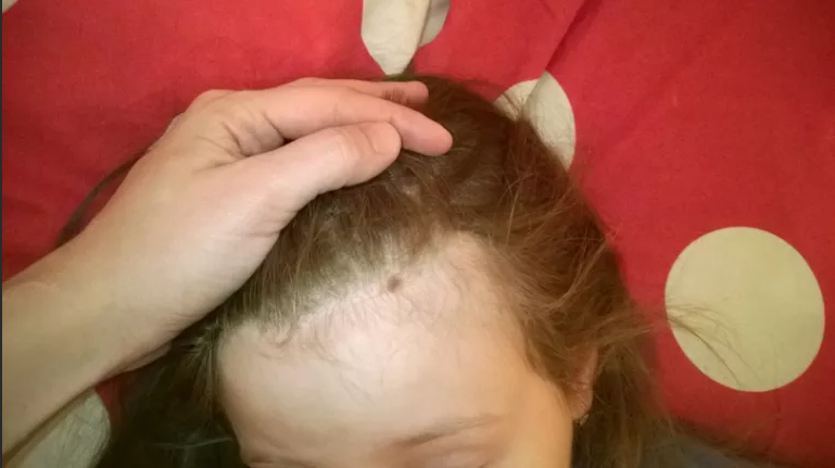 Появилось родимое пятно на голове