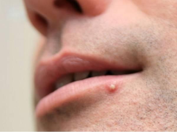 Прыщ на губе: значение приметы