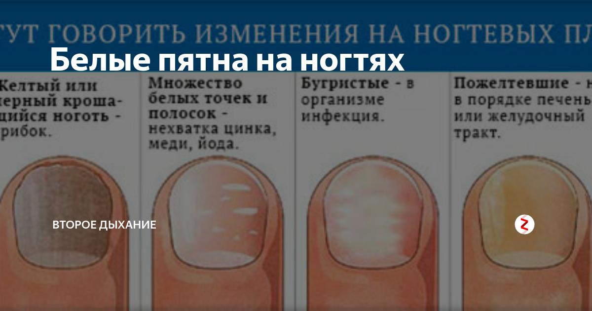 Почему на ногтях рук появляются белые пятна