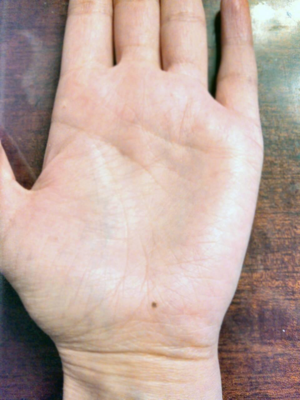 Родинка на ладони - 115 фото родинок и признаки меланомы