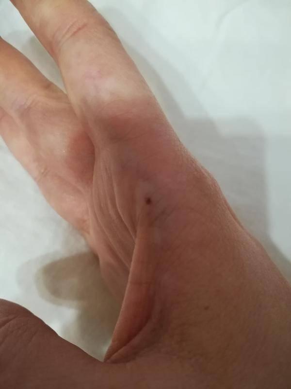 Что означает родинка на указательном пальце