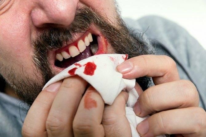 Сонник здоровый зуб выпал. к чему снится здоровый зуб выпал видеть во сне - сонник дома солнца