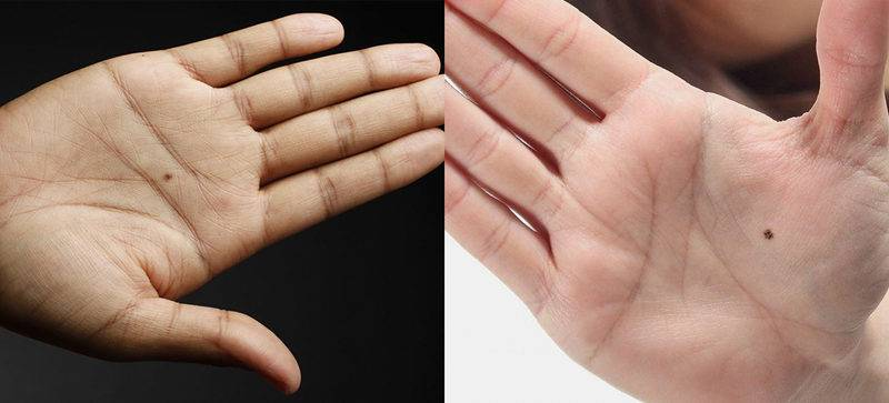 Родинки на пальцах рук
