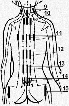 Лечение суставов пищевой фольгой— способы и особенности процедуры