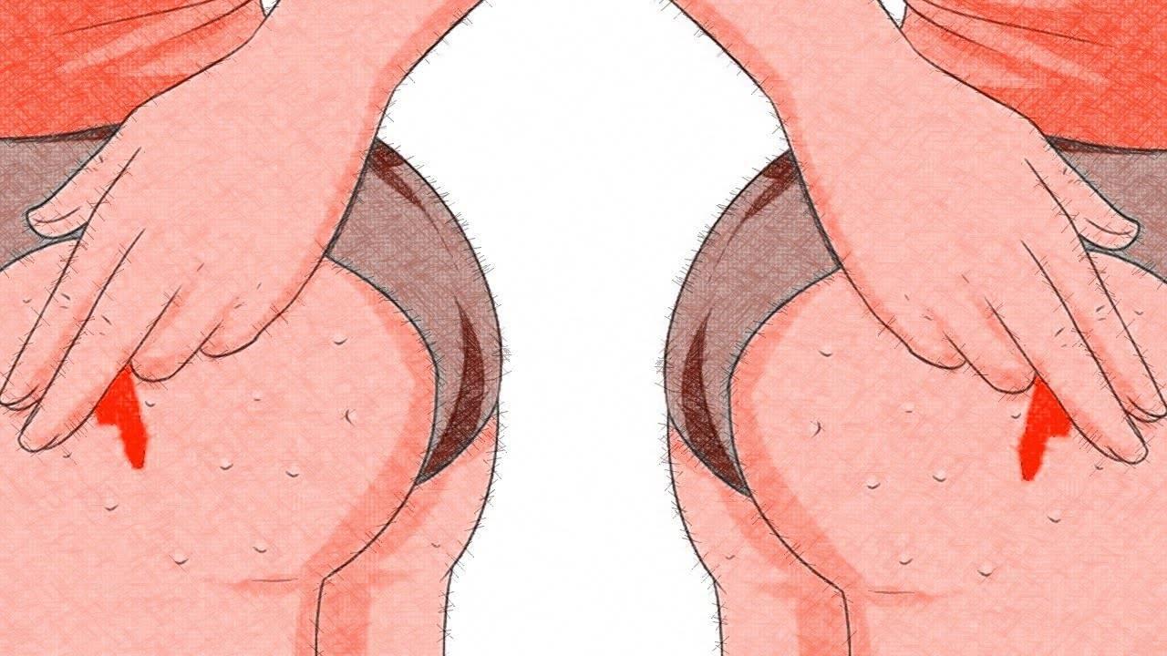 Прыщ на левой руке примета. к чему вскочил прыщ на лбу, носу, лице и теле: народные приметы и поверья. приметы о прыщиках на теле человека - человек и здоровье