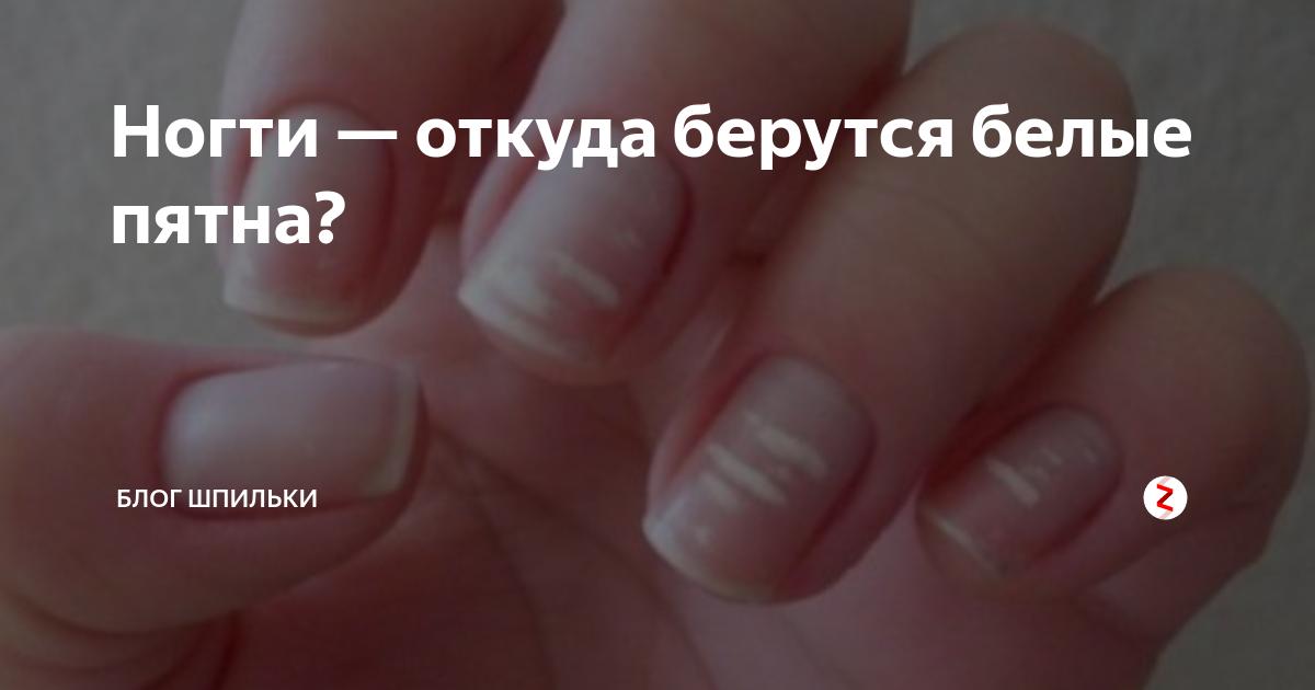 Причины и лечение белых пятен на ногтях пальцев рук