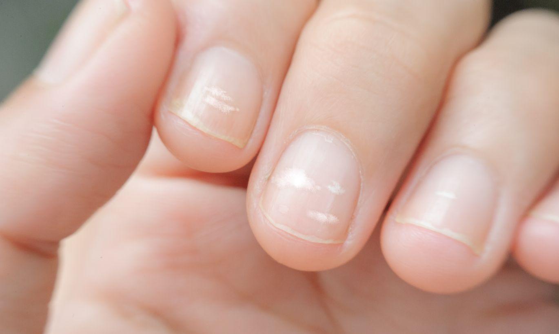 Белые пятна на ногтях пальцев рук: причины, что они значат? | здрав-лаб
