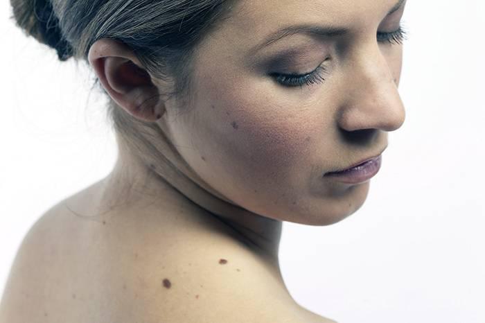 Что означают родинки на спине — приметы о судьбе и здоровье