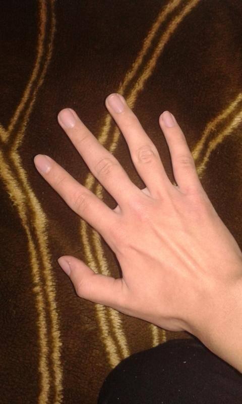 Деформация суставов пальцев рук: лечение, причины